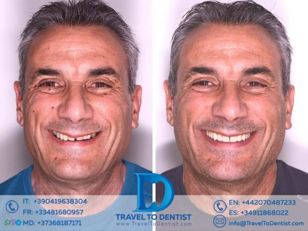 Before and After Dental veneers in Moldova. The patient's face and smile before and after treatment.