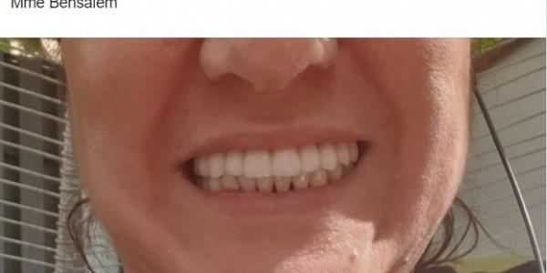 L'avis d'une patiente satisfaite du traitement dentaire en Moldavie